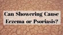 Can Showering Cause Eczema or Psoriasis