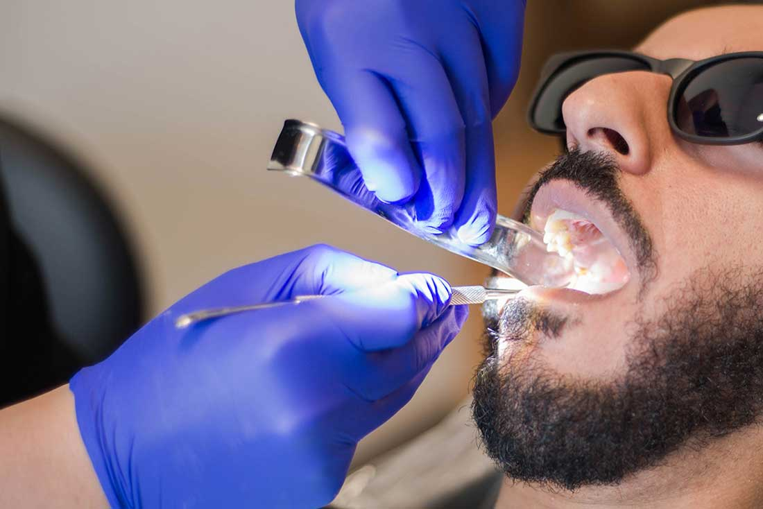 Tooth or consequences: Even during a pandemic, avoiding the dentist can be bad for your oral health