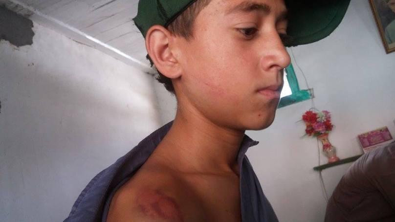 چترال میں ایک اور طالب علم بنا استاد کی وحشیانہ تشدد کا نشانہ، مقدمہ قائم