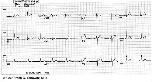 >Are routine ECGs on diabetic HD patients necessary