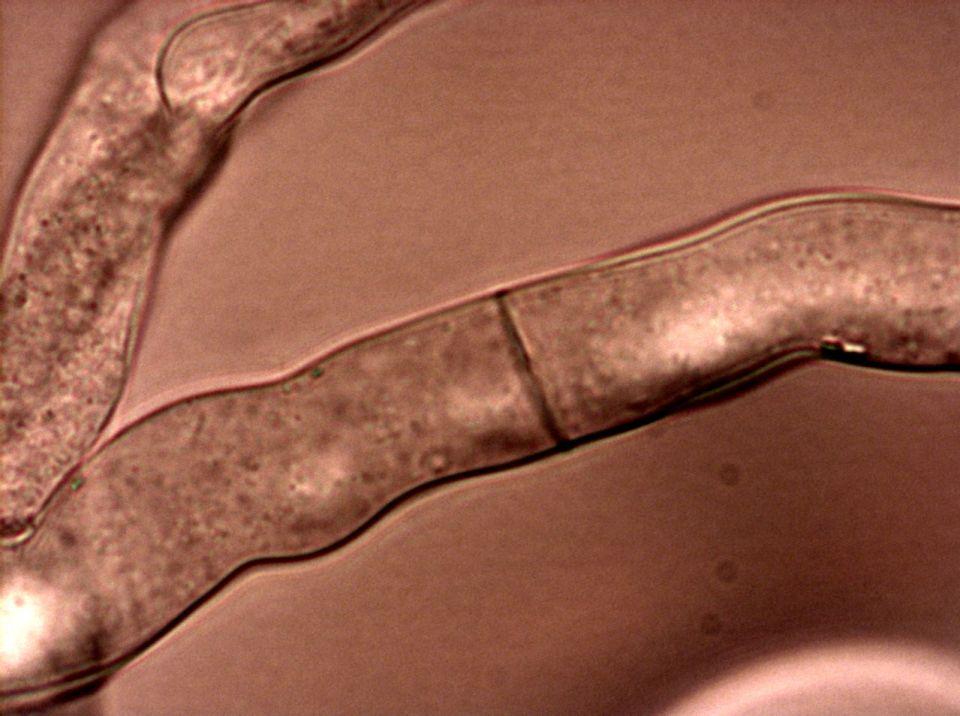 Плесента Neurospora crassa. Снимка: Wikipedia