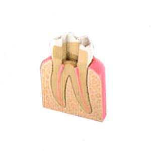 Endodoncias - Urgencias Dentales Mallorca