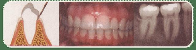 periodonto sano