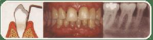 enfermedades periodontales tratamientos