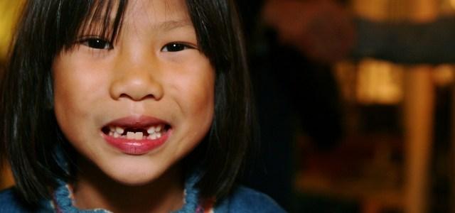 Consecuencia de la pérdida de dientes