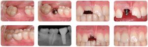 falta de un diente aislado