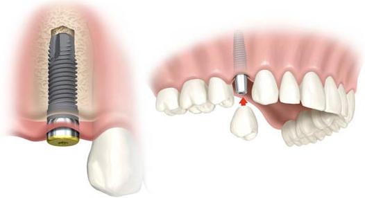 Ventajas y aplicaciones de los Implantes dentales.