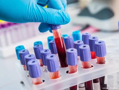 Blutproben. Zur Diagnose von B12-Mangel werden Gesamt-B12, Holo-TC, Methylmalonsäure und Homocystein herangezogen.