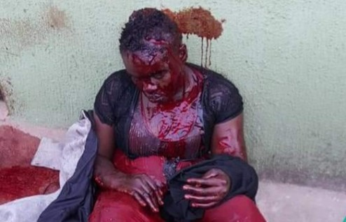 After Inflicting Machete Cuts On Wife, Man Kill Self With Same Weapon (PHOTOS)