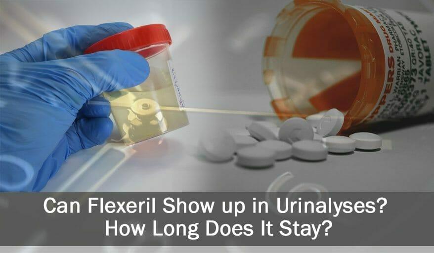 Is Flexeril Detectable in Urine Drug Tests?