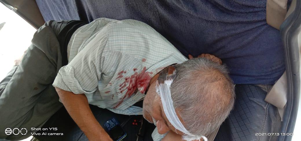 सिंगरौली : नशे में धुत युवक ने उपनिरीक्षक के काटे कान !