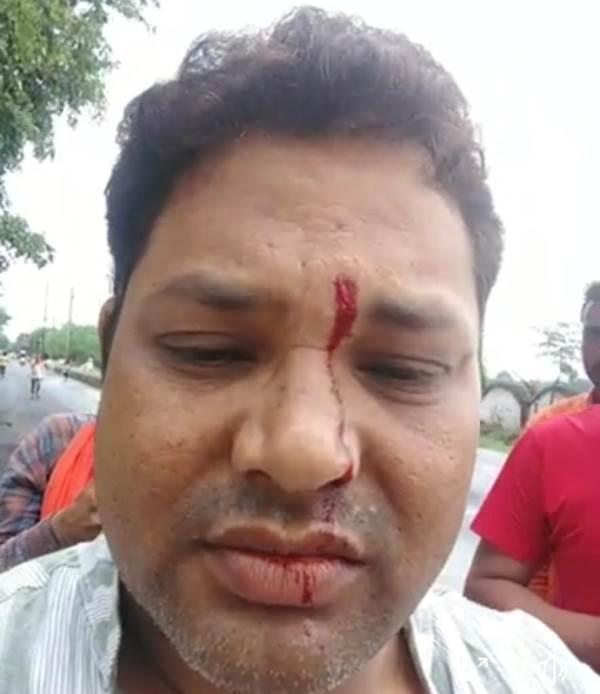 स्थानीय नेता भास्कर मिश्रा को अज्ञात लोगों ने दमभर कुटा,मामला दर्ज।