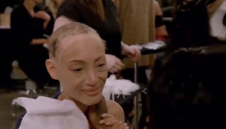 24歲超模「整頭全禿」從小就一直戴著假髮 為夢勇闖時尚圈「拆下假髮」惹哭觀眾:最真實的自己