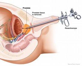 Résection-endoscopique-adenome-prostatique-HBP-RTUP-REP-LASER-uroblog-hupertan-paris