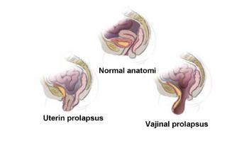 mesane anatomisi