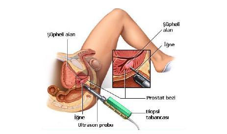 prostat-kanseri3
