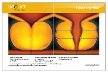 Continue Reading 175,000 Patients Treated with the UroLift® System