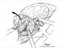 Laparoscopic and Robotic Partial Nephrectomy » Department