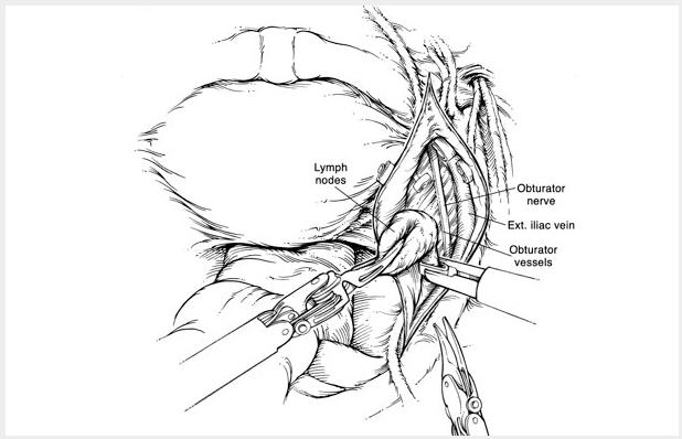 Laparoscopic and Robotic Nephroureterectomy » Department