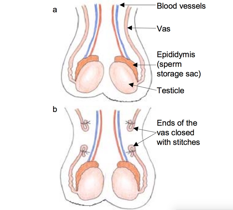 What Is a Vasectomy? | Urology Specialist Sydney