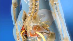 Interstim Therapy through Urological Specialists of Ohio in Springfield Ohio