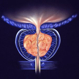 Stage 3 BPH Treatment through Urological Specialists of Ohio in Springfield Ohio