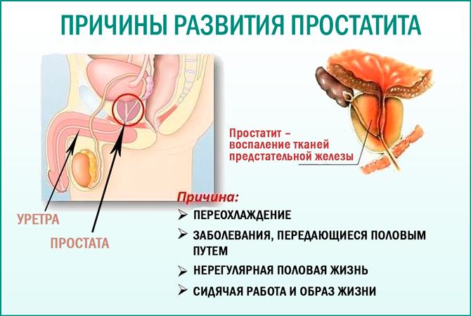 Если у мужчины простатит может заразить женщину лікування простатиту в санаторіях