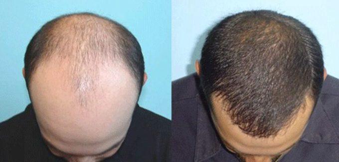 jual minyak kemiri bakar dapat menumbuhkan dan mengatasi kerontokan rambut