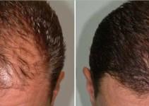 Dimana Tempat Jual Minyak Kemiri Bandung murni 100% berkhasiat untuk memanjangkan rambut, brewok, alis dan kumis. Lalu minyak kemiri dapat juga mengatasi rambut rontok dan ketombe.