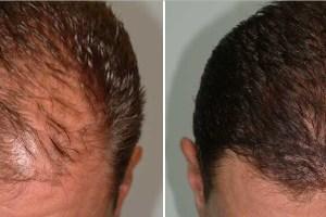 Jual Minyak Kemiri Asli untuk Rambut di Malang asli 100% berguna untuk menebalkan rambut, brewok, alis dan kumis. Setelahnya minyak kemiri dapat juga menghilangkan rambut rontok dan ketombe.