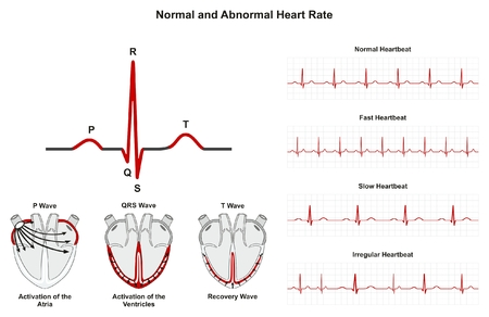 Normal and abnormal heart rate infographic diagram including activation of atria ventricle recovery wave also rh rf