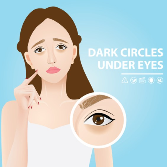 Dark circles under eyes vector illustration Stock Vector - 97506050