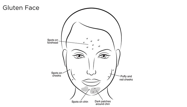 How your diet affects your face