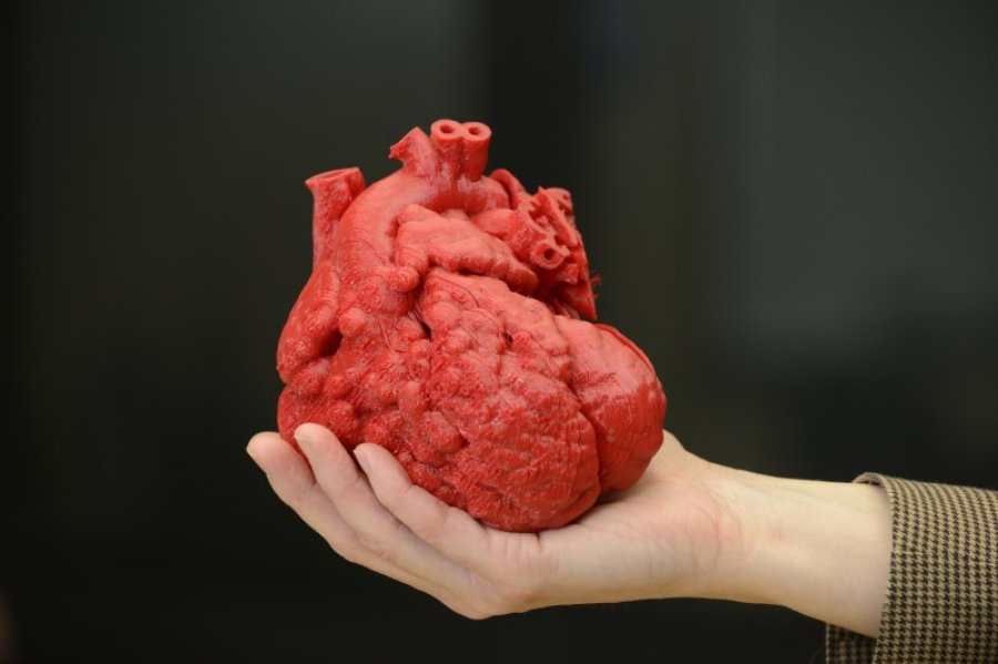 3-D-printed models could transform heart valve replacements