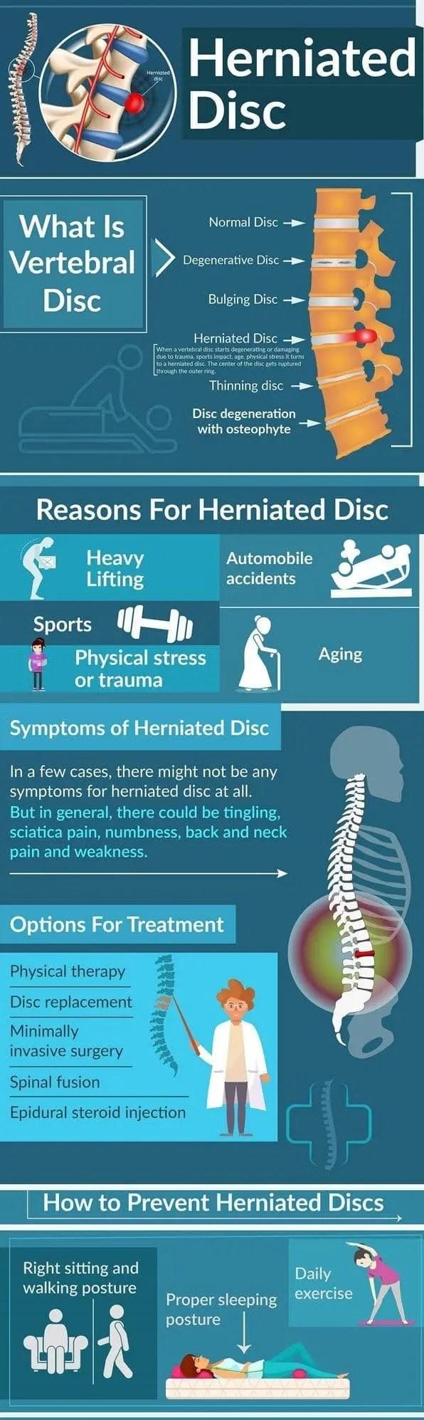 Herniated Dic