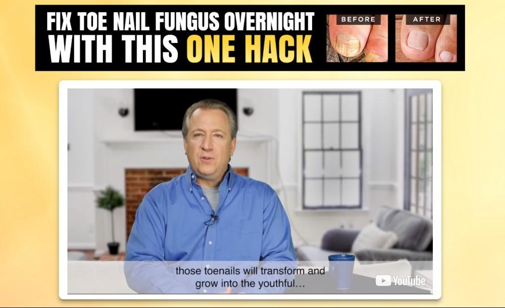 fungus hacks