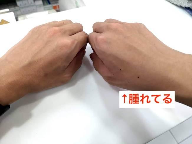 フィリピンの湿布、サロンパスが必要なくらい腫れた右手
