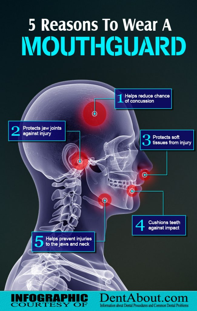 why to wear a mouthguard infographic