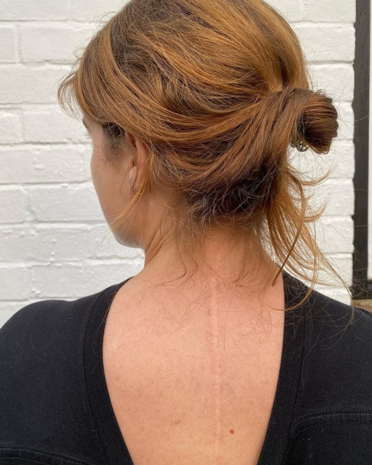 Princess Eugenie Scoliosis Scar Picture Now Pregnant With First Baby