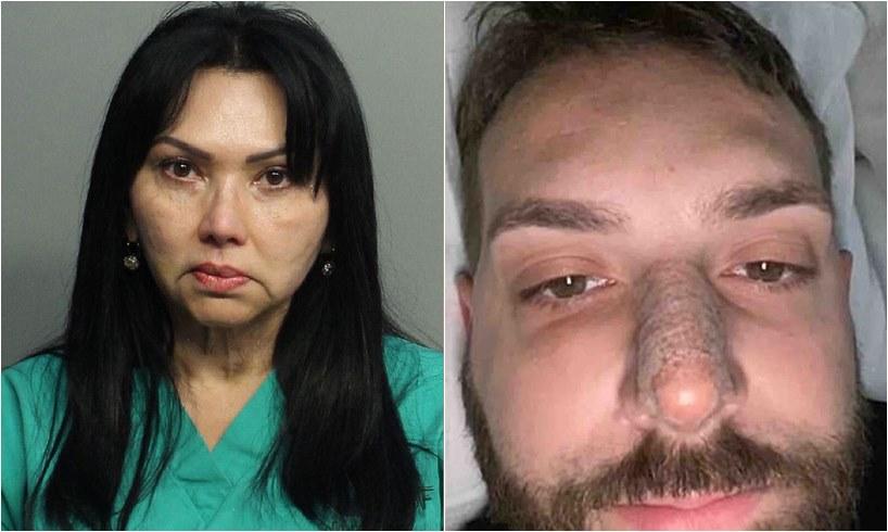 Alcalira Jimenez De Rodriguez Arrested Fake Plastic Surgeon Florida