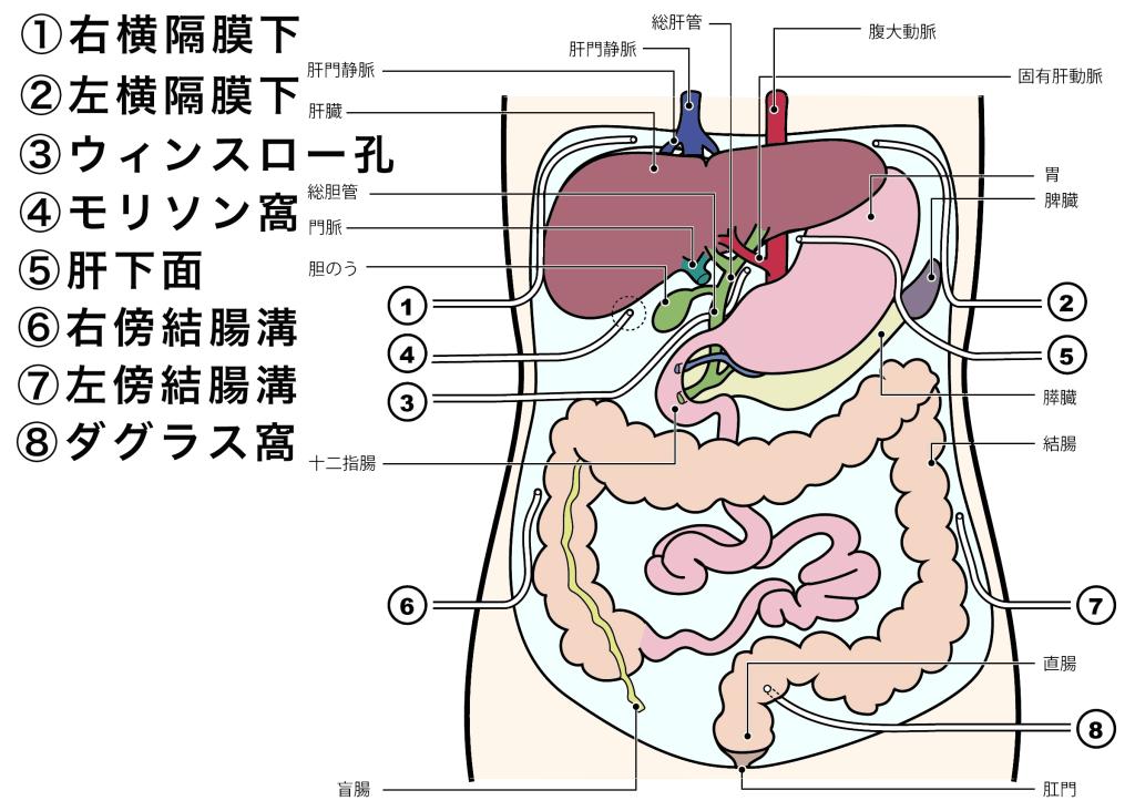 腹腔内ドレーン|ドレーンの管理と目的、種類を詳しく説明します
