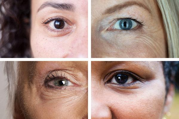 3 Ways To Reduce Puffy Red Eyes In The Morning | UseMyPro ...