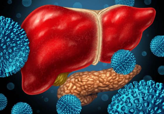 Cara Mengatasi Penyakit Heptitis B Secara Tradisional Alami