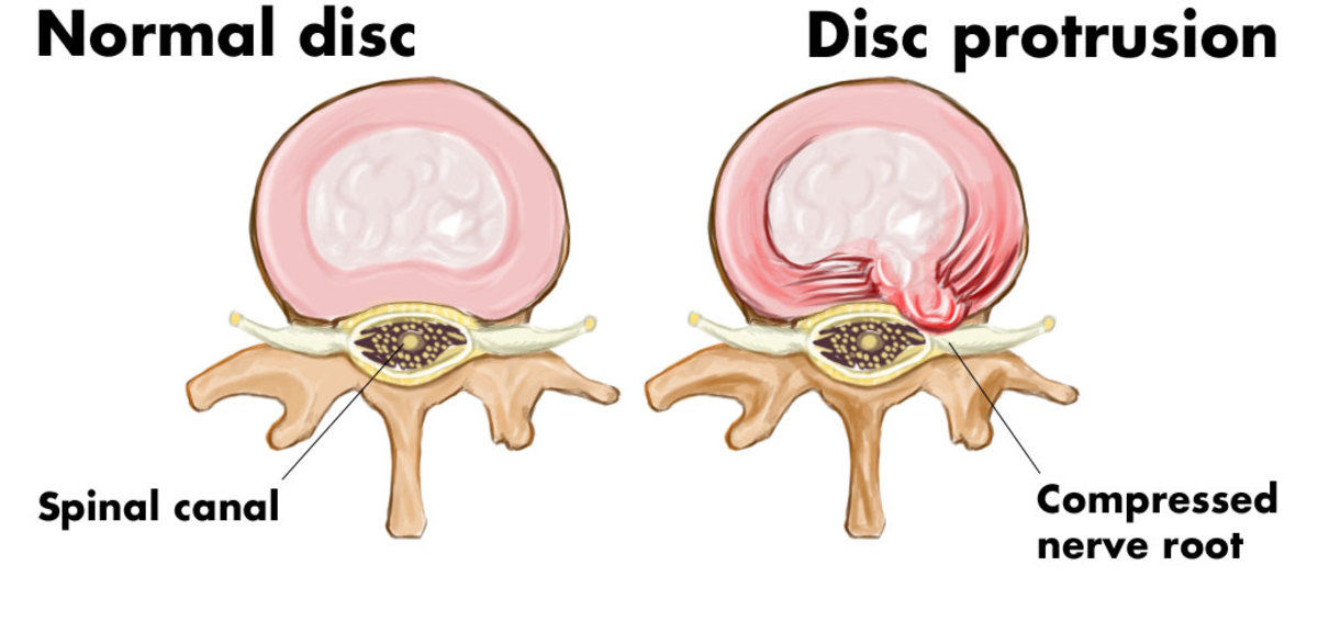 L5 S1 Disc Protrusion—Causes and Treatment of Back Pain Caused by a Slipped/Herniated Disc | YouMeMindBody