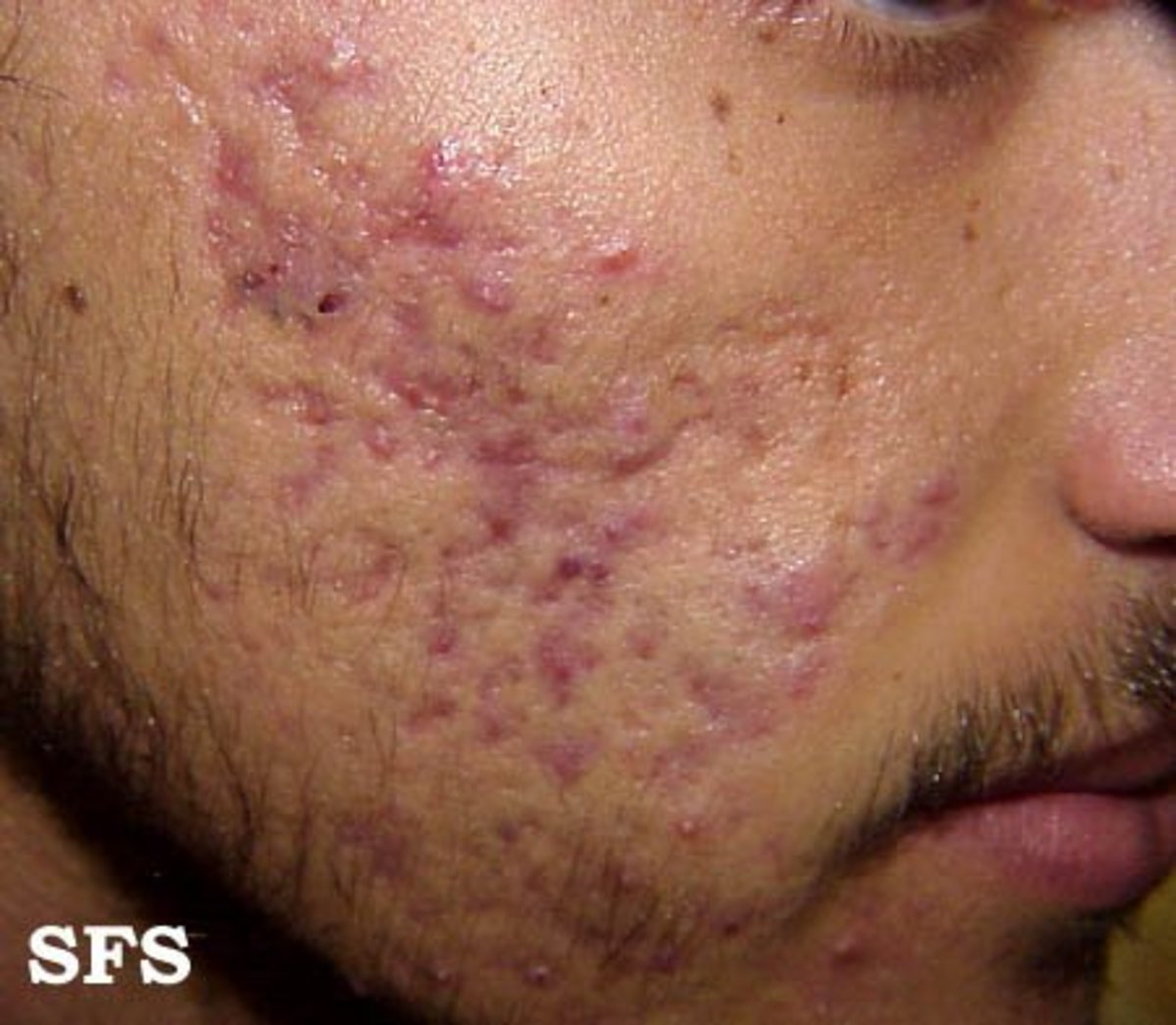 Skin Staph Infections with Pictures  HubPages