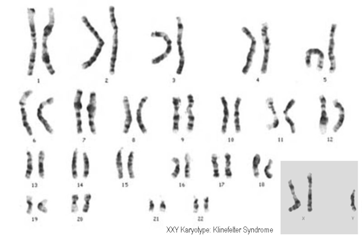 The Y Chromosome: Ancestry, Genetics, and the Making of a