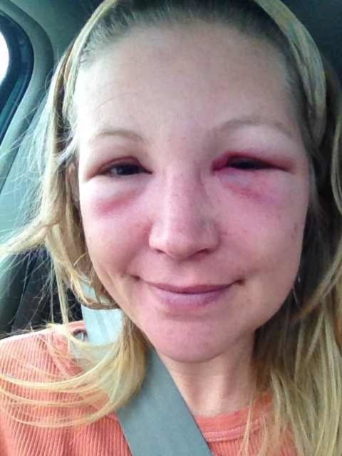48 Hours After Bee Sting To The Eye Began Prescription Medication Previous Day