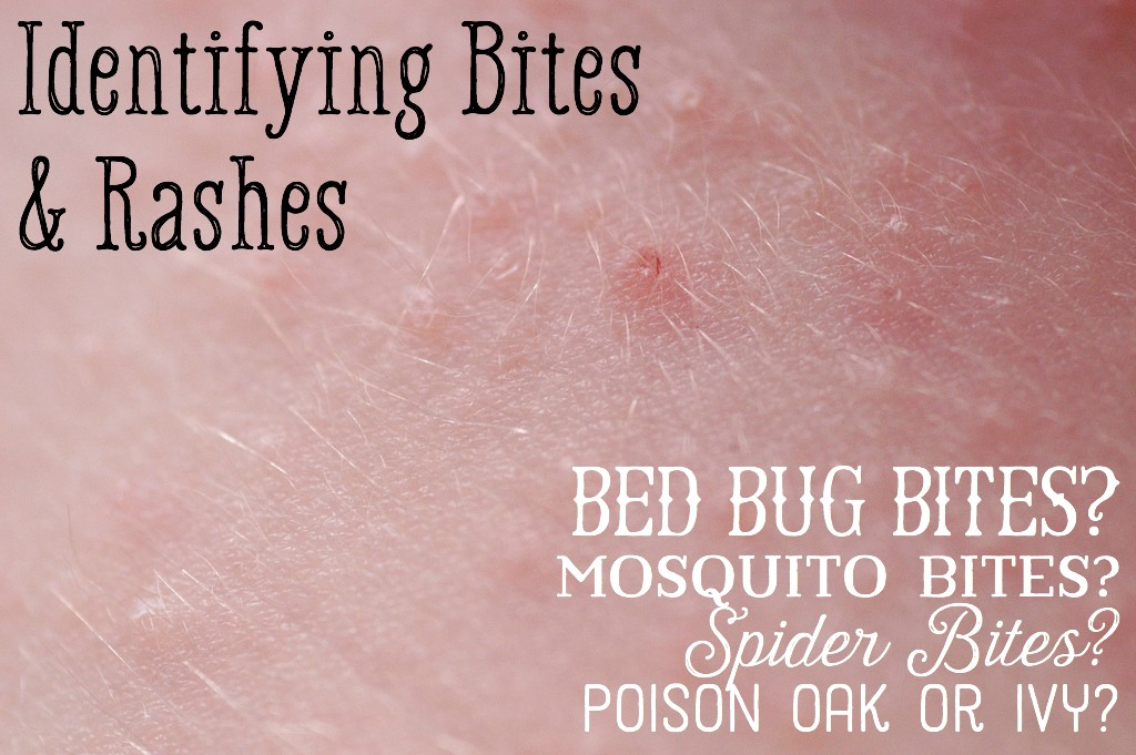 What Are The Symptoms Of Bed Bugs How To Tell If You Have Bed Bugs ...