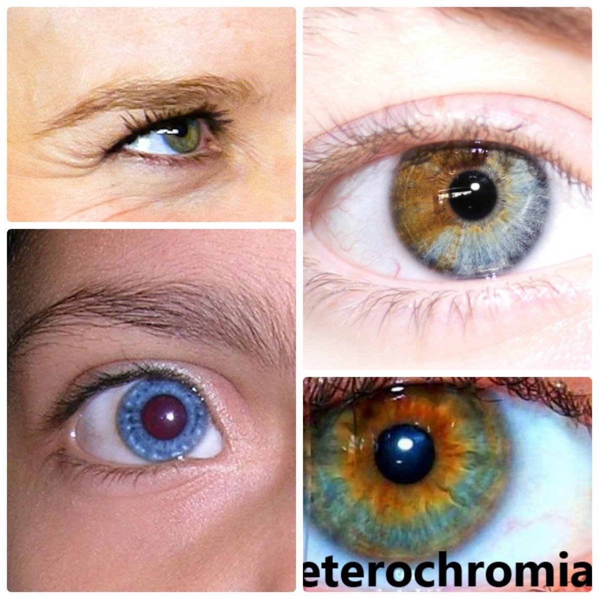 Heterochromia Iridum People With Two Different Colored