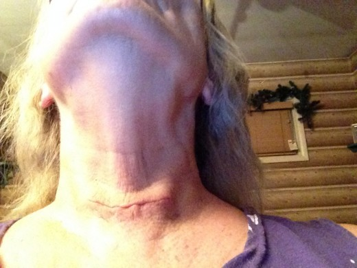 Thyroidectomy - My Experience | HubPages